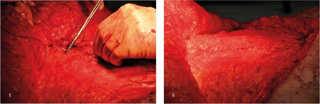 Figur 5: Fortløpende sutur med langsgående tak i fasciekanten Figur 6: Etter lukking i to lag