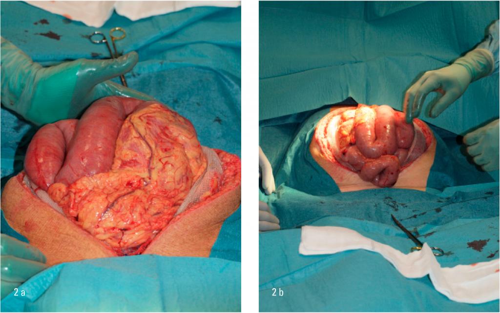 Figur 2a-b: Ødematøs tarm etter operasjon for rumpert abdominalt aortaaneurisme vanskeliggjør direkte lukning av buken