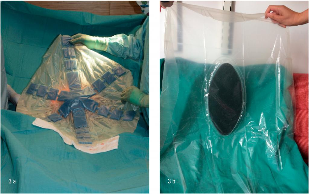 Figur 3a-b: eksempel på to typer adheranseforebyggende plastfilm til bruk mellom bukinnhold og bakre bukvegg. Vanligvis ikke nødvendig å klippe denne til. Dersom den fuktes i saltvann først, er den noe enklere å plassere.