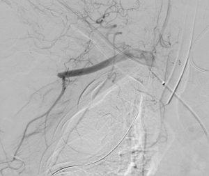 Bilde 2: Arteria axillaris skade med tverravkutting av kontrastsøylen på skadestedet