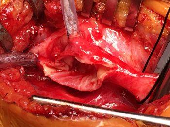 Bilde 1: Arteria carotis med langsgående arteriotomi; etter trombendarterektomi.
