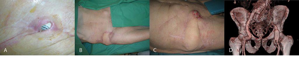 Figur 2. A. Protrusjon av protesen gjennom huden. B. Resultat 10 måneder etter rekonstruksjon. C. Residiv etter 15 måneder. D. CT angiografi viser knekkdannelse i graftet.