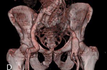 CT angiografi viser knekkdannelse i graftet.