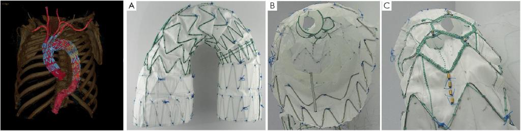 Figur 3: Total endovaskulær behandling av bueaneurisme. A, B og C viser stentgraftet med indre kanaler hvor dekkede stenter som settes inn fra halskarene skal føres inn. D viser 3D CT-rekonstruksjon av stentgraft med stenter i truncus brachiocephalicus og a carotis communis sin, samt venstresidig carotis til subclavia bypass. (Kilde for CT-bilde: Radiologisk avdeling, OUS-Rikshospitalet)