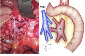 Figur 1: Fotografi og skjeamtisk tegning av aorto-mesenteriell venebypass med vena saphena magna graft til fire grener av a. mesenterica superior ved akutt disseksjon. Bypass graftet er lagt gjennom mesenteriet til første jejunum slynge for å hindre knekkdannelse og sikre kort graftlengde.