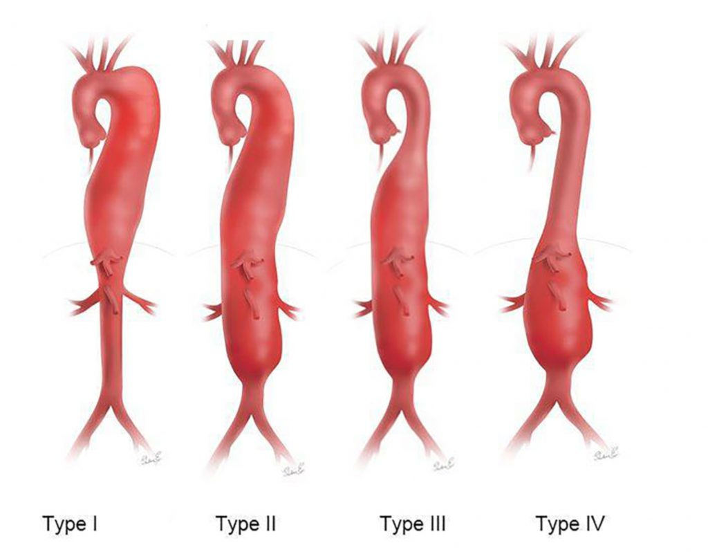 Figur 4: Thoracoabdominale aneurismer, Crawford inndeling type I-IV. Referanse: www.mainlinehealth.org/conditions-and-treatments/conditions/thoracoabdominal-aortic-aneurysm