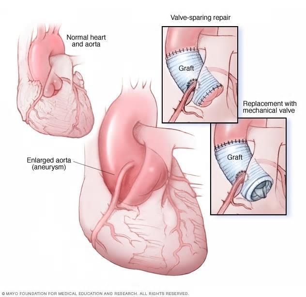 Figur 2: Dilatasjon av aortaroten er et typisk funn hos pasienter med bindevevssykdom, og kan ofte repareres med klaffebevarende conduit, hvor den native aortaklaffen bevares. Alternativt må det også settes inn kunstig klaff. Coronararteriene blir reimplantert i protesen