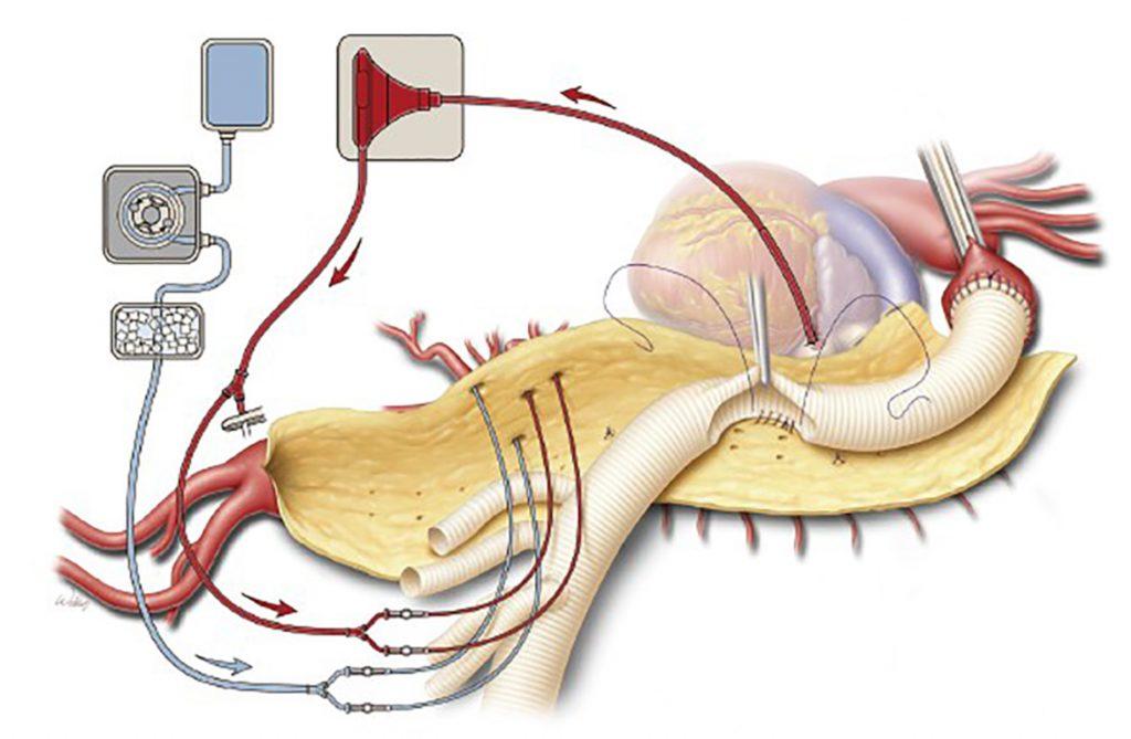 Figur 5: Thoracoabdominal aortakirurgi. Reimplantasjon av intercostalarterier i protesen. Viscerale kar kan reimplanteres på samme måte i én aortapatch,, eller som her separat til presuturerte geriner på protesen (Coselli-prostese). Dette er aktuelt ved bindevevssykdom for å forebygge patchaneurismer. Kanylering for hjerte-lungemaskin er annerledes enn hos oss, - her hentes oksygenert blod fra lungevene, mens vi har venekanyle i høyre atrium og oksygenator i maskinen. Separate slanger til intestinalarterier, og infusjon av Ringers løsning i nyrearterier brukes på samme måte hos oss.