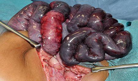 Figur 5a. Malrotasjon med volvulus og tarmgangren. Tarmen volverer rundt radix mesenterii superior.