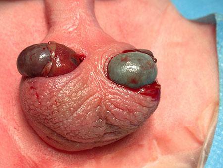 Bilateral ekstravaginal testikkeltorsjon hos nyfødt.