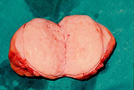 Figur 4. Wilms tumor ved diagnose.
