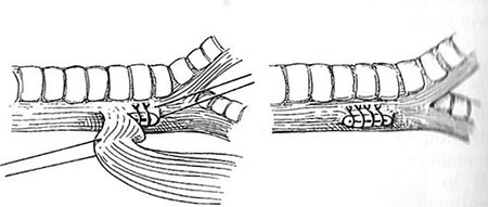 Figur 5. Lukning av tracheoøsofageal fistel.