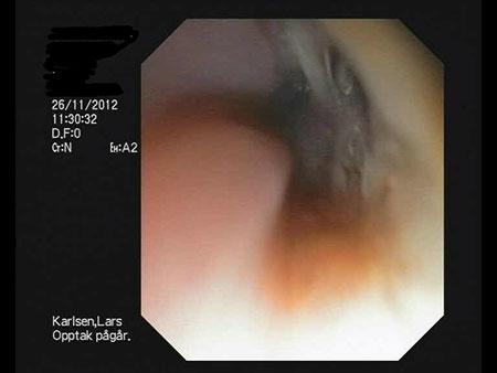 Endoskopi etter en uke som viser hull inn i trachea i øvre høyre hjørne.