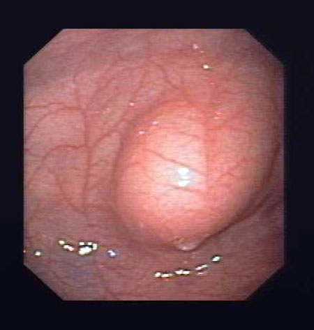 Bilde 1. Fingerimpresjon under anleggelse av PEG.