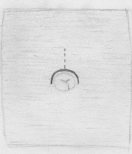 Bilde 3. Supraumbilical incisjon.