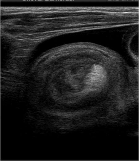 Figur 1. Invaginasjon sett ved ultralyd med fri væske i bukhulen rundt invaginatet. Foto utlånt fra Barneradiologisk avdeling OUS-Ullevål ved Dr. Ann Nystedt.