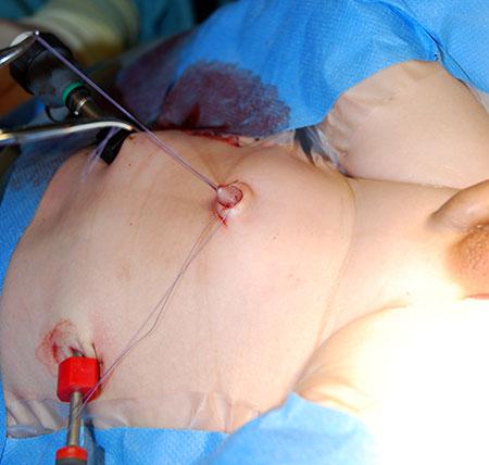 Figur 3. Laparoskopisk assistert TEPT på en 2 måneder gammel gutt med Hirschsprung. Røntgen colon viste ingen sikker overgangssone. a) Ved laparoskopi så vi heller ingen sikker overgangssone. Colon sigmoideum ble hentet fram i navlen og biopsi fra øvre og nedre del av sigmoideum ble tatt med åpen teknikk. Begge biopsier viste ganglieceller i begge vegglag. Krøset på colon sigmoideum ble delt fra biopsistedet til omslagsfolden, og rectum ble fridissikert tarmnært laparoskopisk til ca 4 cm ovenfor analåpningen.