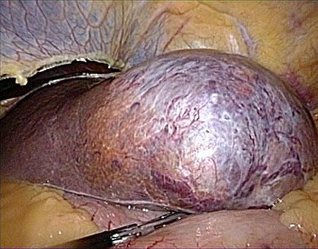 Figur 1: Intraoperativt bilde av stort HCC i segment 2/3 operert med laparoskopisk lateral venstresidig levereseksjon. (Foto B. Edwin/ B. Røsok).