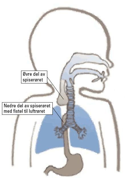 Figur 1. Vanligste form for øsofagus atresi. Illustrasjon: Senter for sjeldne diagnoser, Rikshospitalet.
