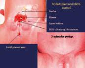 Figur 1: Nyfødt pike med blæreexstrofi, og samme pasient postoperativt
