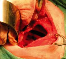 Fig 3. Laparotomi for lukning av stort venstresidig posterolateralt diafragma hernie (Bochdalek hernie).