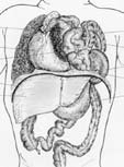 Fig 1. Venstresidig diafragma hernie med intrathorakal