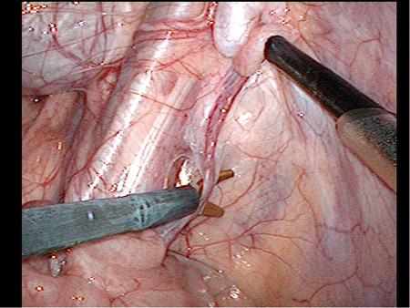 Figur 3b: A.testicularis klipses og deles