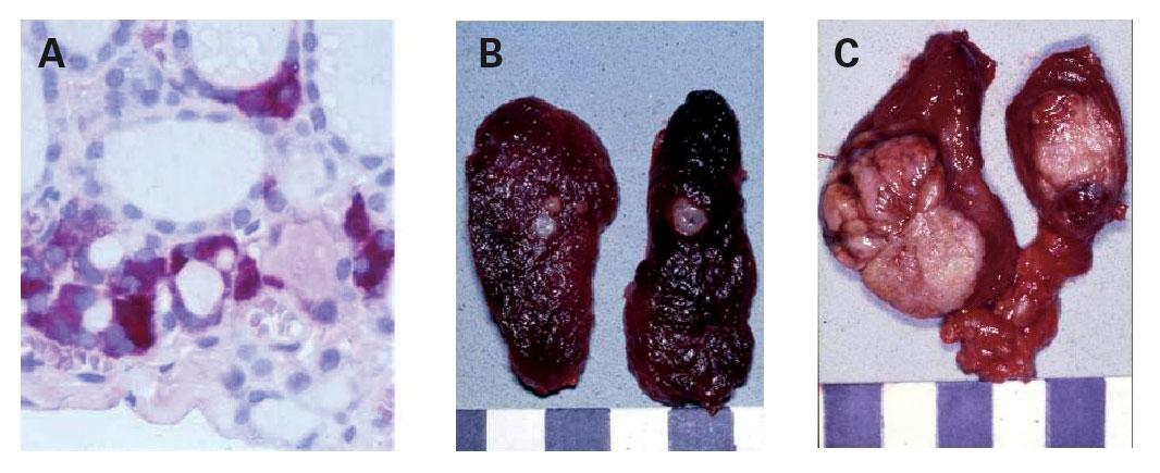 Figur 1. Hyperplasi-neoplasi-sekvens av medullær cancer thyreoidea ved MEN 2. A: C-celle-hyperplasi (farging mot kalsitonin). B: medullært mikrokarsinom. C: avansert medullært karsinom med kapselinvasjon og lymfeknutemetastase