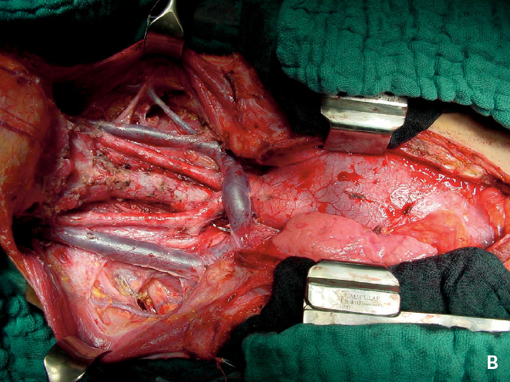 Figur 2. Situs ved (A) profylaktisk thyreoid-ektomi og sentralt glandeltoalett hos en 1,5 år gammel gutt med MEN 2B og (B) etter thyreoidektomi og cervikalt og mediastinalt glandeltoalett (fire-kompartment-disseksjon) for avansert medullær cancer thyreoidea hos en 12 år gammel jente med MEN 2B.