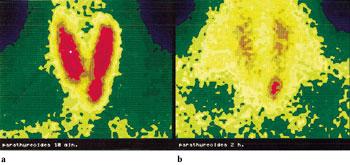Fig 2. Parathyreoidea, sestamibiscintigrafi. Før og etter thyreoideasubtraksjon.