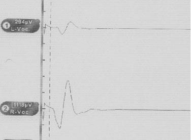 Figur 1. Elektromyografisk summasjons-potensial med tubuselktrode etter stimulasjon med 1 mA av høyre nervus vagus (latenstid ca. 4 ms, amplitude 1118 µV).