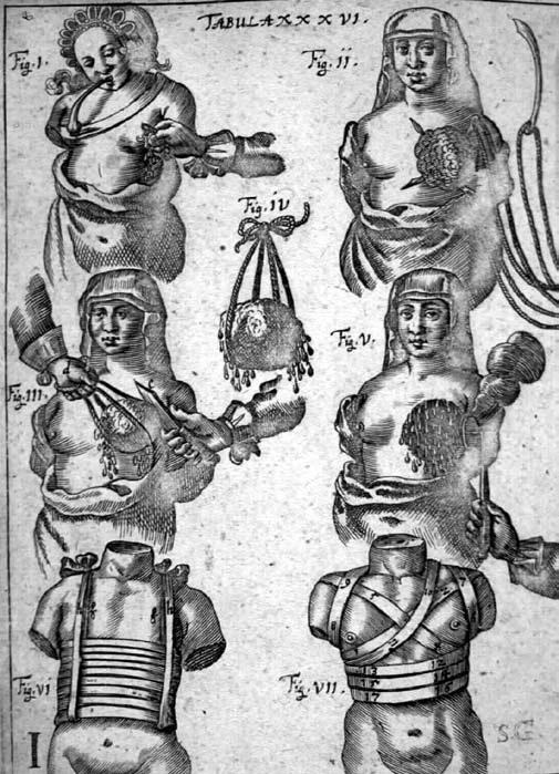 """Kirurgisk amputasjon av bryst, slik den var illustret i Johaann Scultetus """"Armamentarium Chirurgicum"""""""