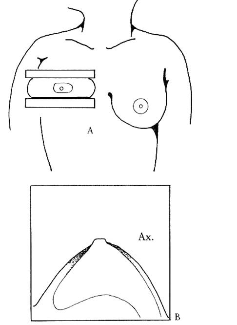 Bilde 3. Figur A: Orientering av brystet ved kraniokaudal projeksjon. Figur B: Skjematisk illustrasjon av mengden kjertelvev sett ved hjelp av den kraniokaudale projeksjon.