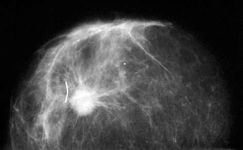 Bilde 4. Malign tumor detektert ved mammografi.