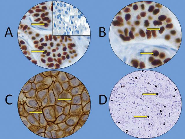 Figur 4. Immunhistokjemisk deteksjon av biomarkører i brystkreftvev. Kromogenet i denne prosesser er di-aminobenzidine (DAB) slik at alle målmolekyler i IHC snitt farges brunt. Det er antistoffet som bestemmer hvilket målprotein som detekteres. A. Østrogen reseptor. Kraftig brunfarging av cellekjernene som viser lokalisasjonen (gul pil). Resten av vevet er kontrastfarget blått med hematoxylin. Innfelt er en sektor med svulstvev som er negativ for østrogen reseptor (bare blåfargete kjerner med hematoxylin) (40x forstørrelse). B. Progesteronreseptor lokalisert til kjernen (gul pil) slik som i A (40x forstørrelse). C. HER-2 farging med kraftig (3+) membranfarging (gul pil) som viser at reseptoren er lokalisert til cellemembranen (63x forstørrelse). Bilde: Ivar Skaland, Stavanger Universitetssjukehus. D. Ki-67 farging lokalisert til cellekjernen (gul pil)(20x forstørrelse). Bilde: Ivar Skaland, Stavanger Universitetssjukehus.