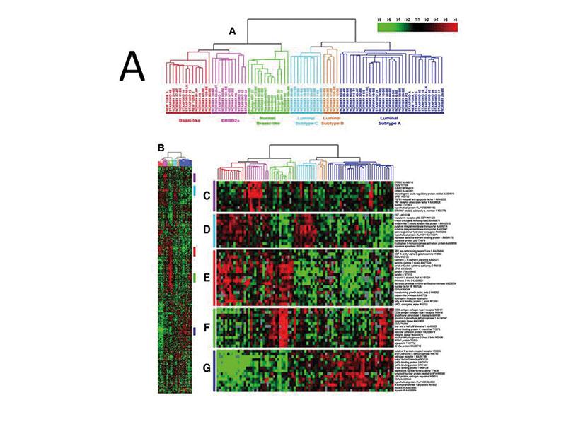 """Figur 5. A. """"Unsupervised genekspresjonsanalyse med hierarkisk clustering"""" definerer subtyper i brystkreft basert på utrykk av 456 gener. Disse er Luminal A, Luminal B, HER-2, Normal Like og Basal Like. (Gjengitt med tillatelse av PNAS [5])."""