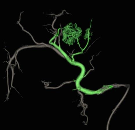 Figur 2: 3D-angiografiopptak gjort under TACE kan bidra til bedre visualisering av tumor og identifisering av tilførende arteriegrener som i denne rekonstruksjonen er markert med grønt.