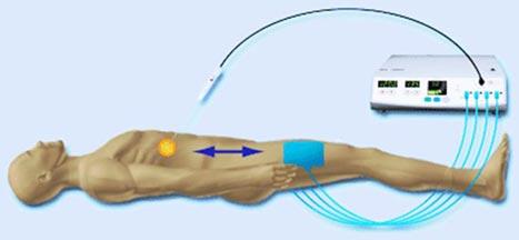 Figur 1: RF- ablasjon. Generator leverer strøm som går mellom nål plassert i levertumor og jordingsplater på pasientens lår.