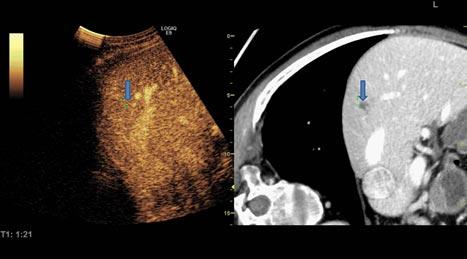 Figur 3: Perkutan RF med bildefusjon. Tumor fremstilt på CT, men ikke på ultralyd. Når GPS-markør (pil) ble plassert på tumor på CT-bildet, ble punktet med samme koordinater vist også på ultralydbildet (pil), slik at den kunne behandles med RF.