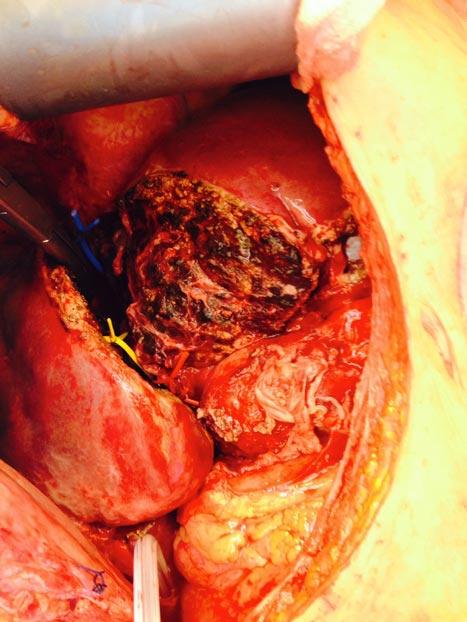 Figur 2: Peroperativt bilde der leveren er delt i to som forberedelse til utvidet høyresidig hemihepatektomi og hvor det er satt blå karstrikk på drenerende høyre/midtre levervene, gul strikk på høyre gallegang og rød strikk på høyre lever-arterie (tillatelse til publisering av bildet er innhentet fra pasienten).