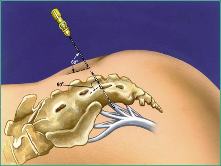 Figur 1. Skjematisk tegning av kanylering av sacral foramen for stimulering av vestre S3-nerverot. Midlertidig elektrode for testing (PNE-test) føres inn gjennom kanylen med elektrode-enden beliggende an mot nerveroten.