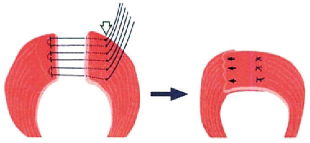 Figur 3. Skjematisk illustrasjon av overlappende plastikk av ytre sfinkter.
