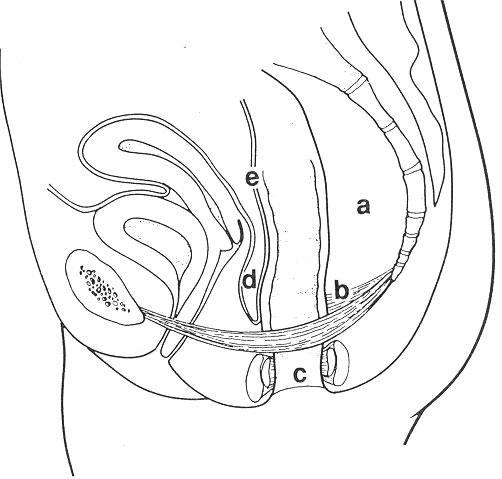 Fig. 2. Patogenetiske faktorer(1)