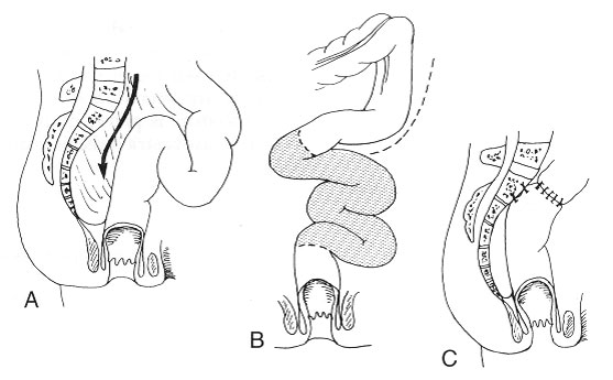 Fig. 3. Rektopeksi med sutur og sigmoideumreseksjon (reseksjonsrektopeksi)