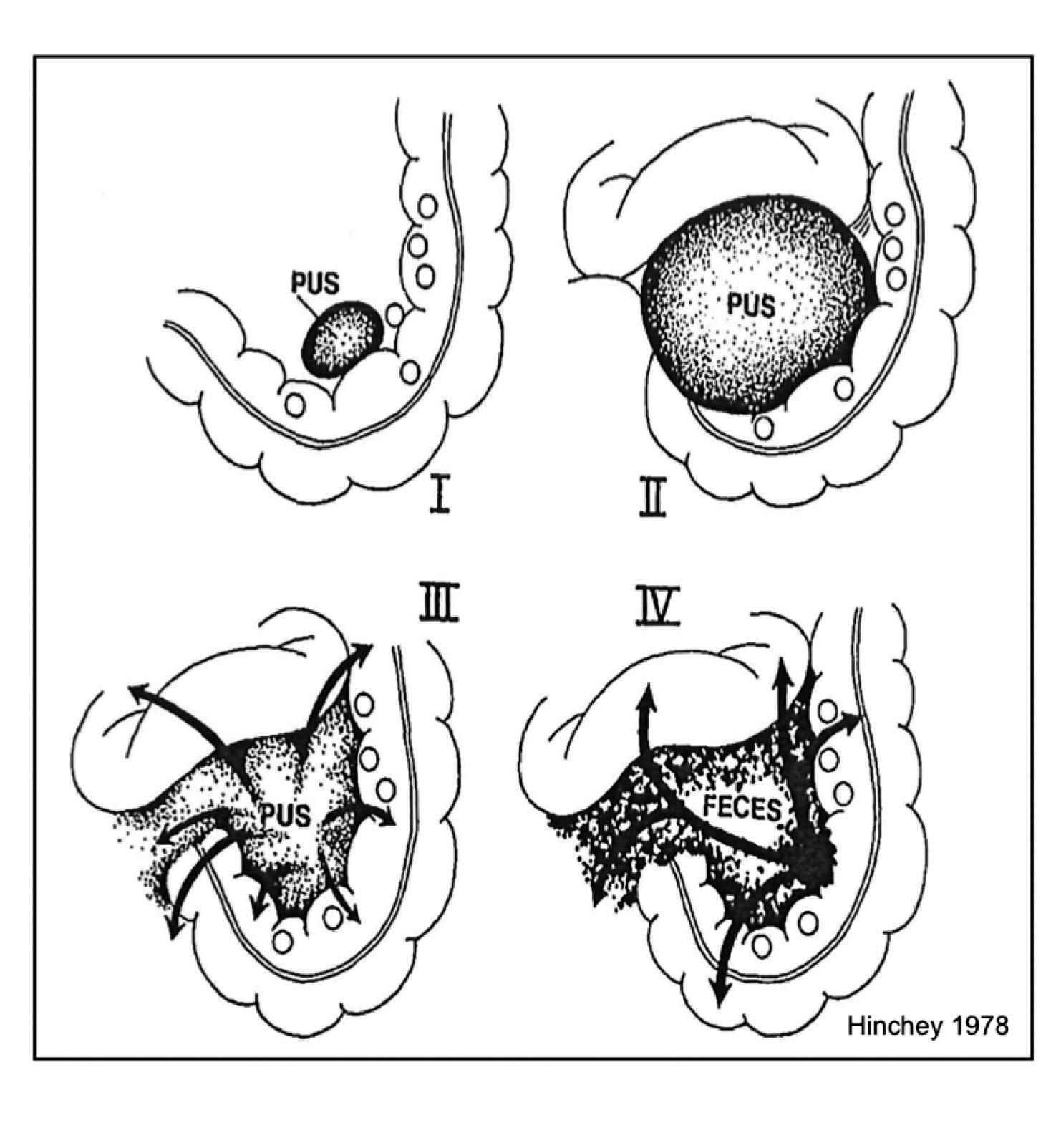 Figur 1. Hinchey klassifikasjon (10): I. Perikolisk abscess; II. Bekkenabscess; III. Purulent peritonitt; og IV. Fekal peritonitt (åpen kommunikasjon mellom tarm og bukhule)