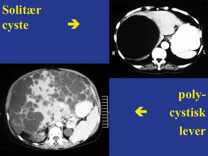 Figur 1. Øverst til høyre sees solitær symptomgivende lever-cyste og nederst til venstre lever gjennomsatt av større og mindre cyster (polycystisk lever).