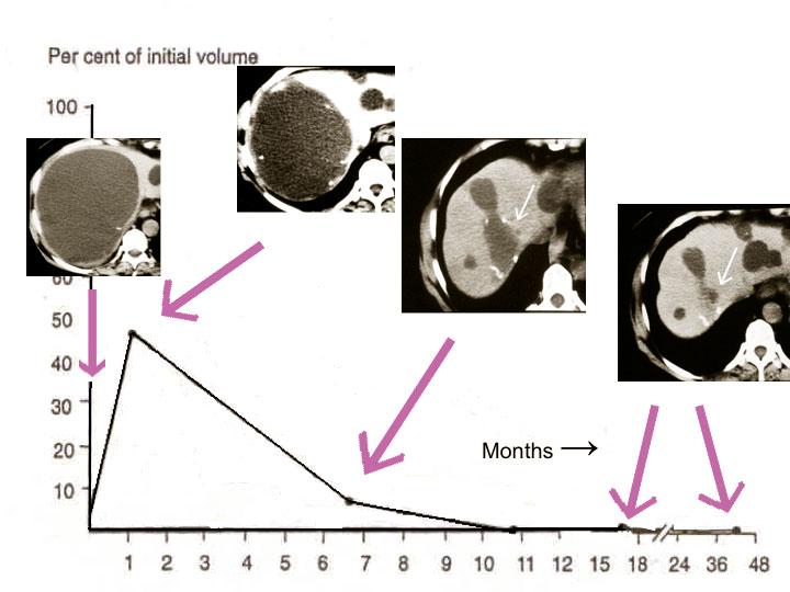 Figur 2. Her sees et karakteristisk forløp etter sklerosering av solitær levercyste. Legg merke til den temporære refyllingen av cysten de første ukene etter behandling.