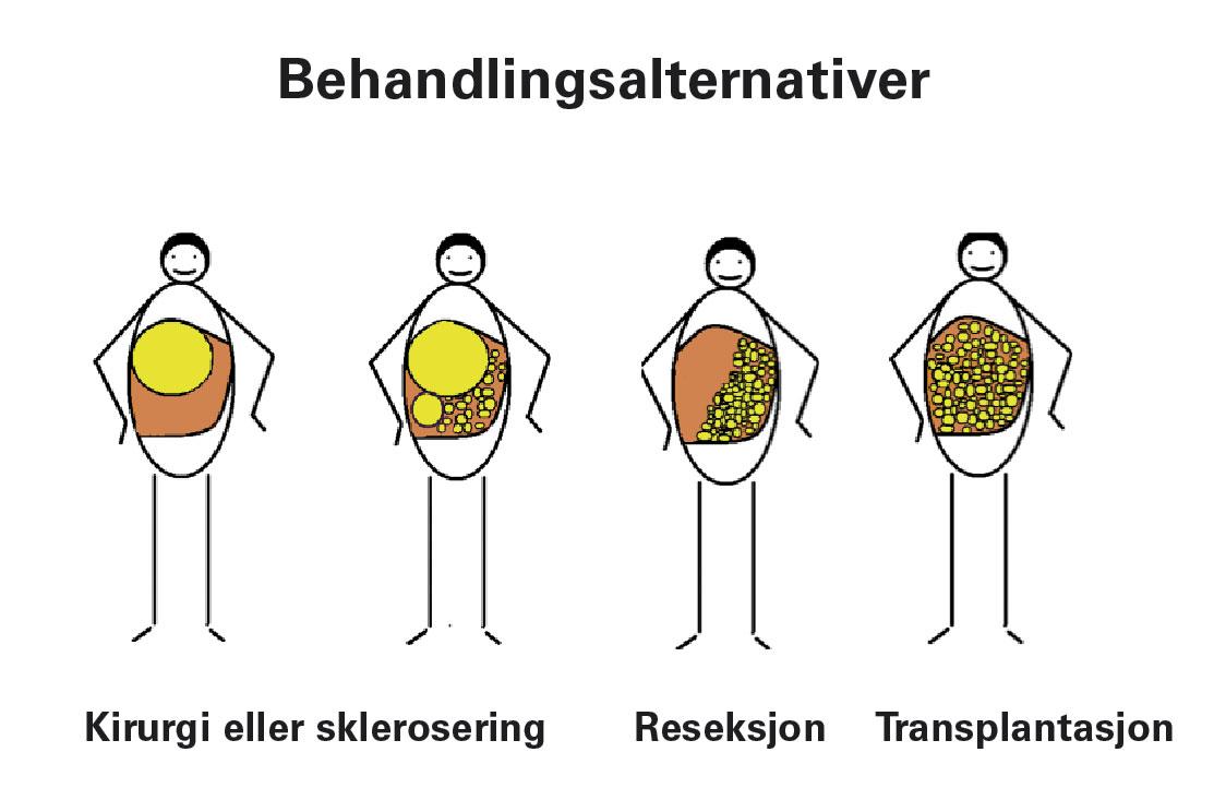 Figur 3. Skjematisk fremstilling av behandlingsalternativer relatert til cystenes størrelse og utbredelse.