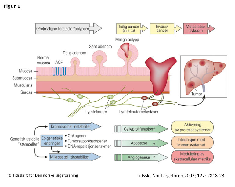 Figur 1. Adenom-karsinom sekvensen ved colorectal cancer. Utvikling av colorectal kreft fra normalmucosa til metastatisk kreft. Utviklingen følger flere utviklingstrinn hvor multiple molekylære faktorer bidrar. Genetisk instabilitet er en tidlig drivkraft i karsinogenesen. Interaksjon mellom multiple molekylære faktorer er avgjørende for vekst, invasjon og spredning. (ACF: aberrante kryptfokuser). Figuren er gjengitt fra (Søreide K. Genetikk og molekylær klassifisering ved colorectal kreft. Tidsskr Nor Laegeforen. 2007;127(21):2818-23) med tillatelse fra Tidsskriftet.