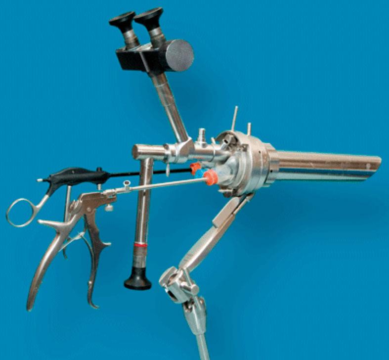 Figur 3. Operasjonsmikroskop for TEM (transendoskopisk mikrokirurgi).